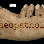 Seven tell-signs that help archaeologists see disease